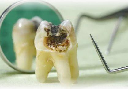 kenali-karies-gigi-dan-gigi-berlubang-dan-apa-perbedaannya-13052